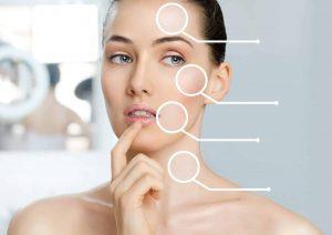 skin-care-concerns